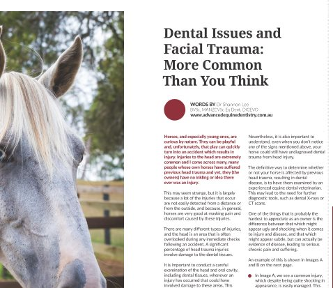 Dental issues and Facial Trauma: More Common Than You Think